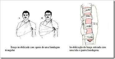 Imobilização de um braço